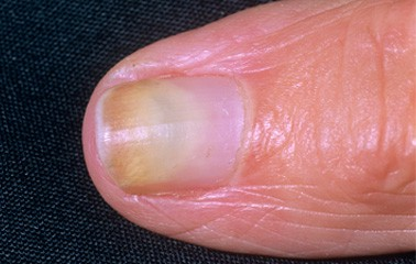 The easiest way to safeguard yourself from nail fungus' harmful effect would be to put in a high-quality efficient and treatment plan for their everyday ...