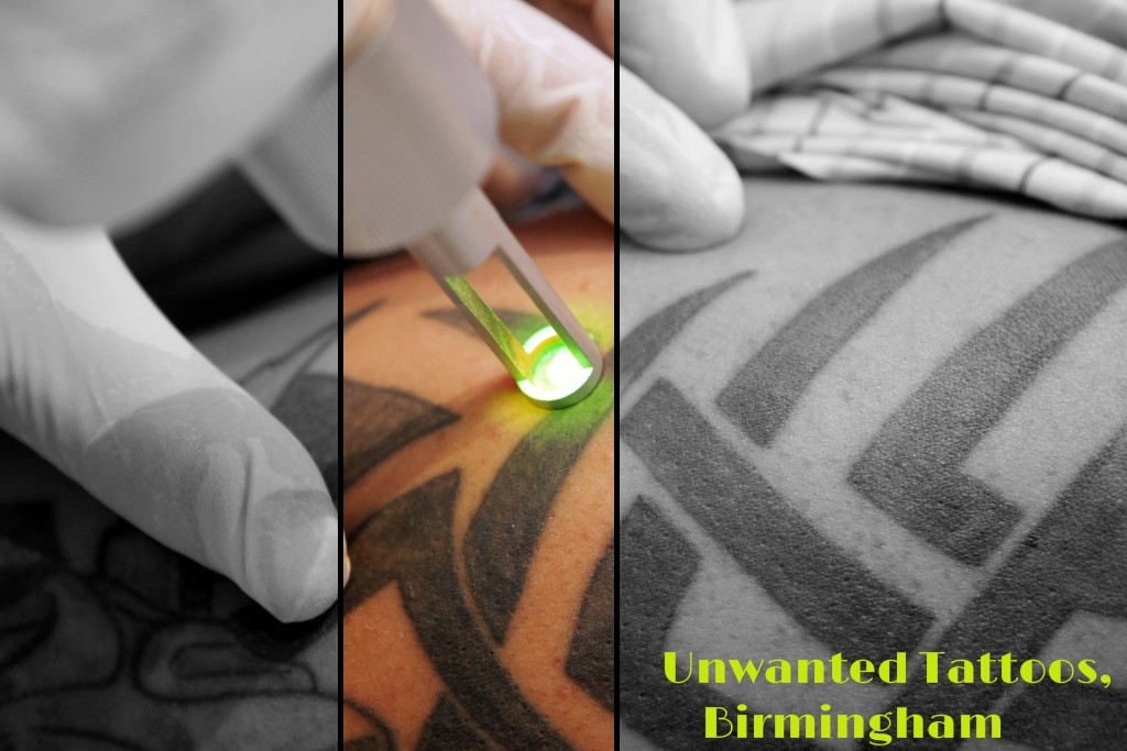 Unwanted Tattoos — Laser Tattoo Removal Using Advanced Technology