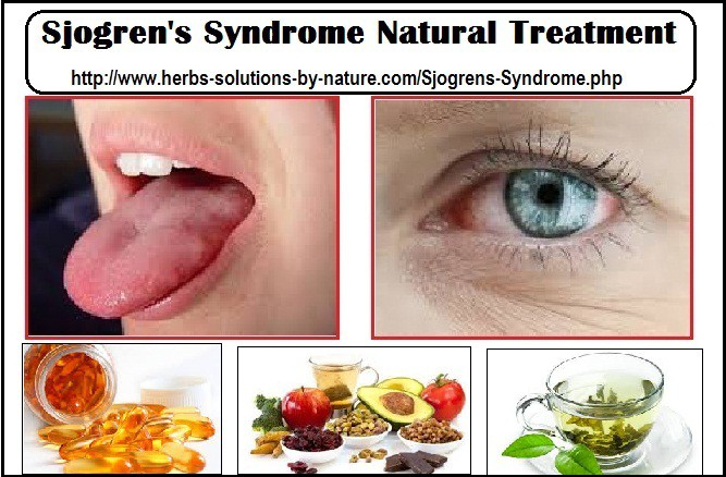 Sjogren S Syndrome Natural Treatment