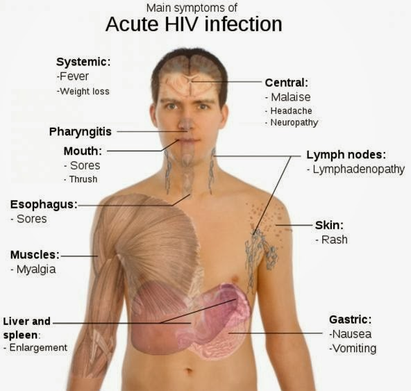 ONE OF HIV SYMPTOMS IS RASH – Mother with a Mission – Medium
