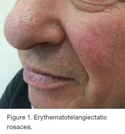Are mistaken. glandular facial characteristics was