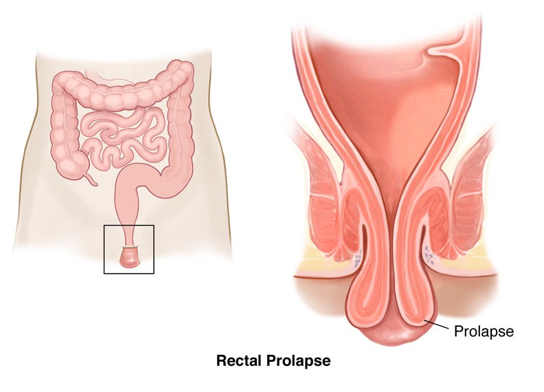 rectal prolapse symptoms