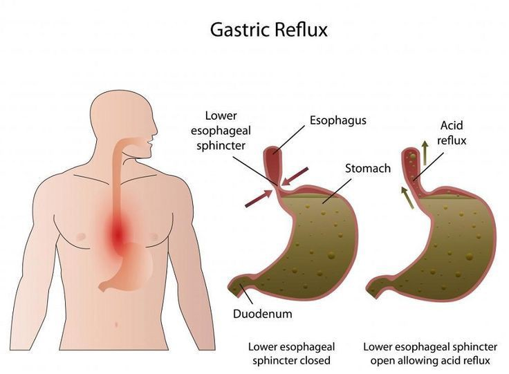 Treatment Of Bile Reflux Involves Medications Or In Severe Cases Surgery The Gastro Experts Deal With Gastric Treatment In Gurgaon At One Of The Best