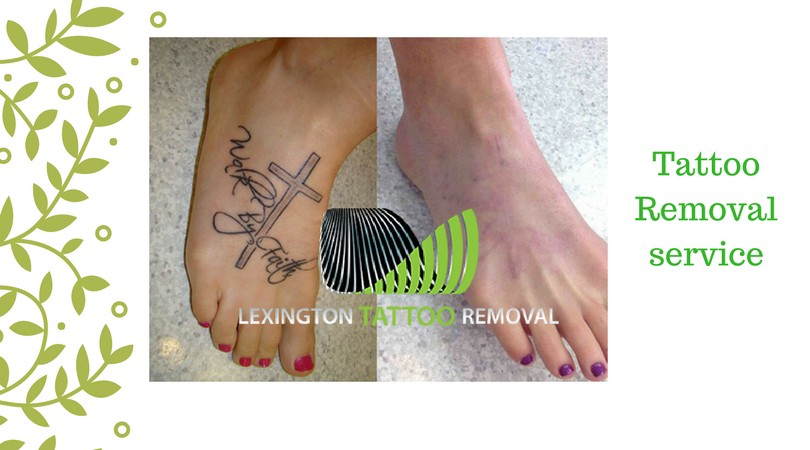Permanent Tattoo are not so Permanent Anymore – Lexington Tattoo ...