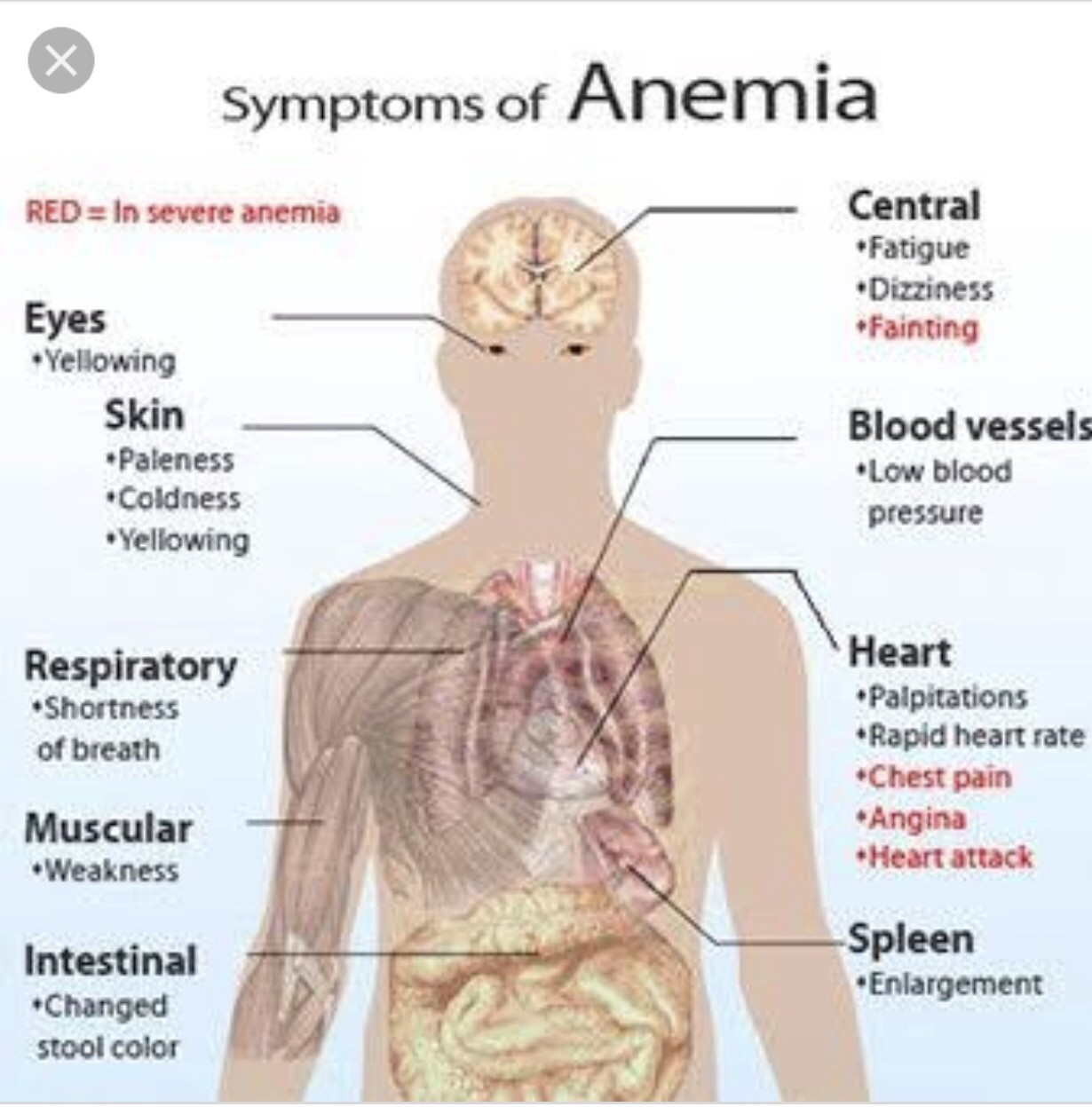 ANEMIA – TODAY SCIENCE – Medium