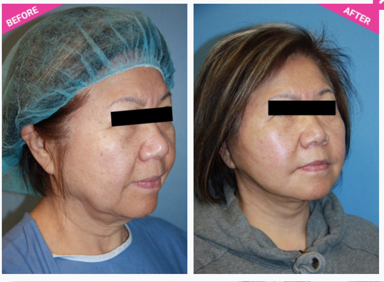 face lift rhytidectomy before after beverly hills plastic surgeon dr cat begovic medium