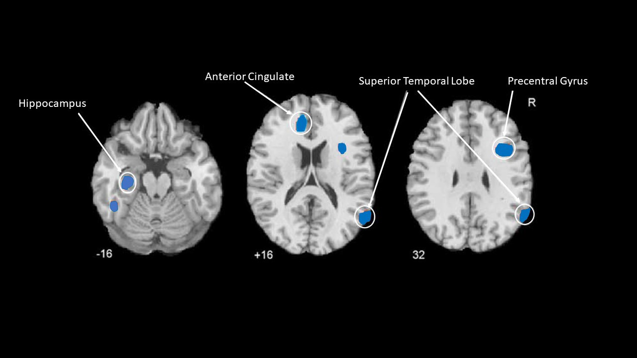 Long sitting in one place can affect the part of the brain responsible for memory