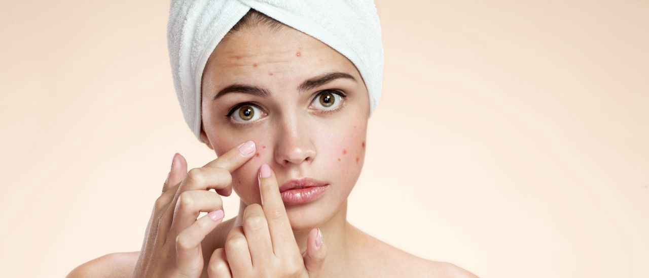 How to keep skin healthy and acne free