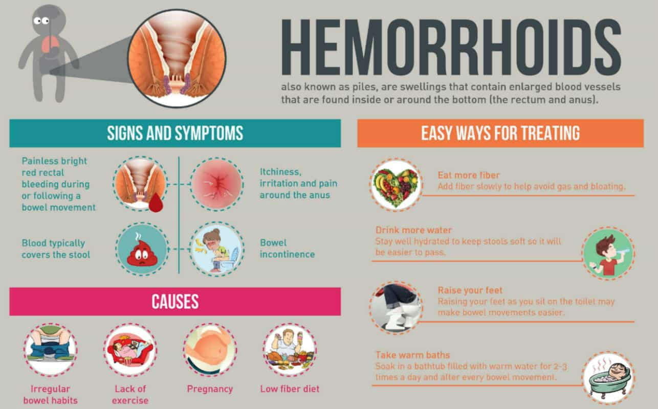 How is hemorrhoids treated during pregnancy