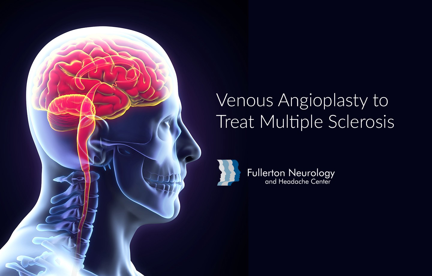 Ancient History — Venous Angioplasty to Treat Multiple Sclerosis