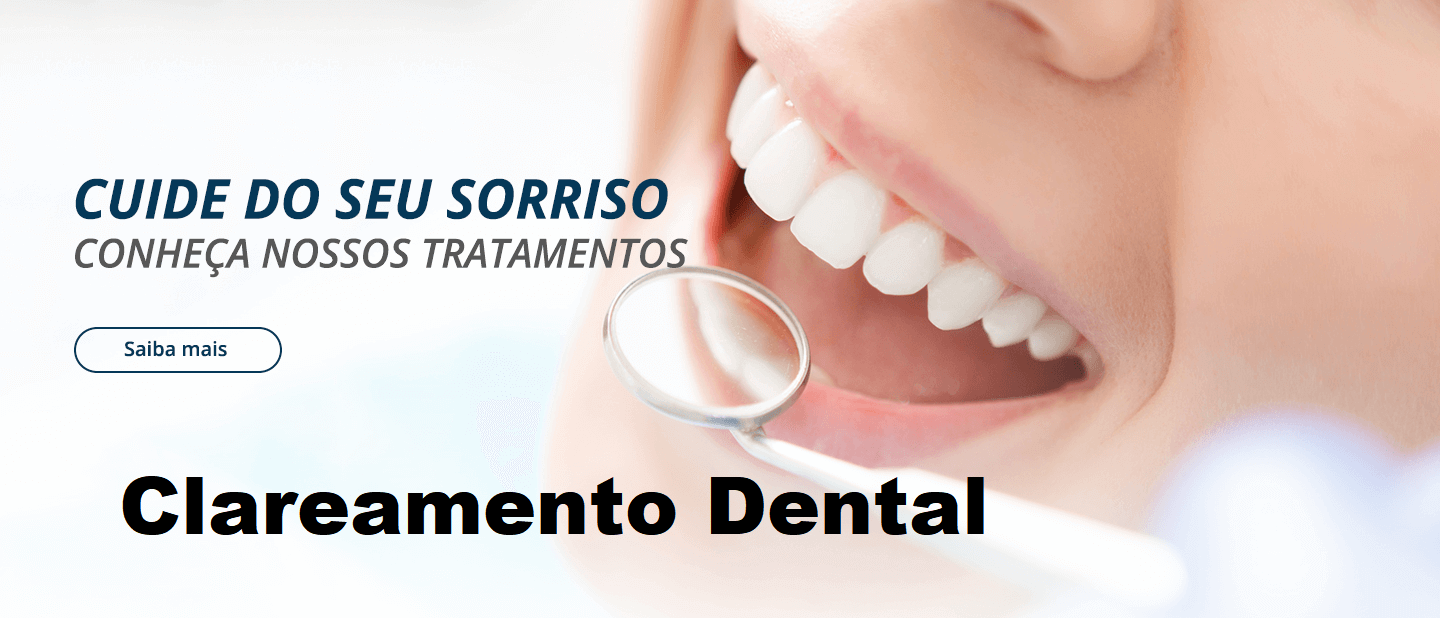 Clareamento Dental Conheca Mais Sobre Clareamento Dental
