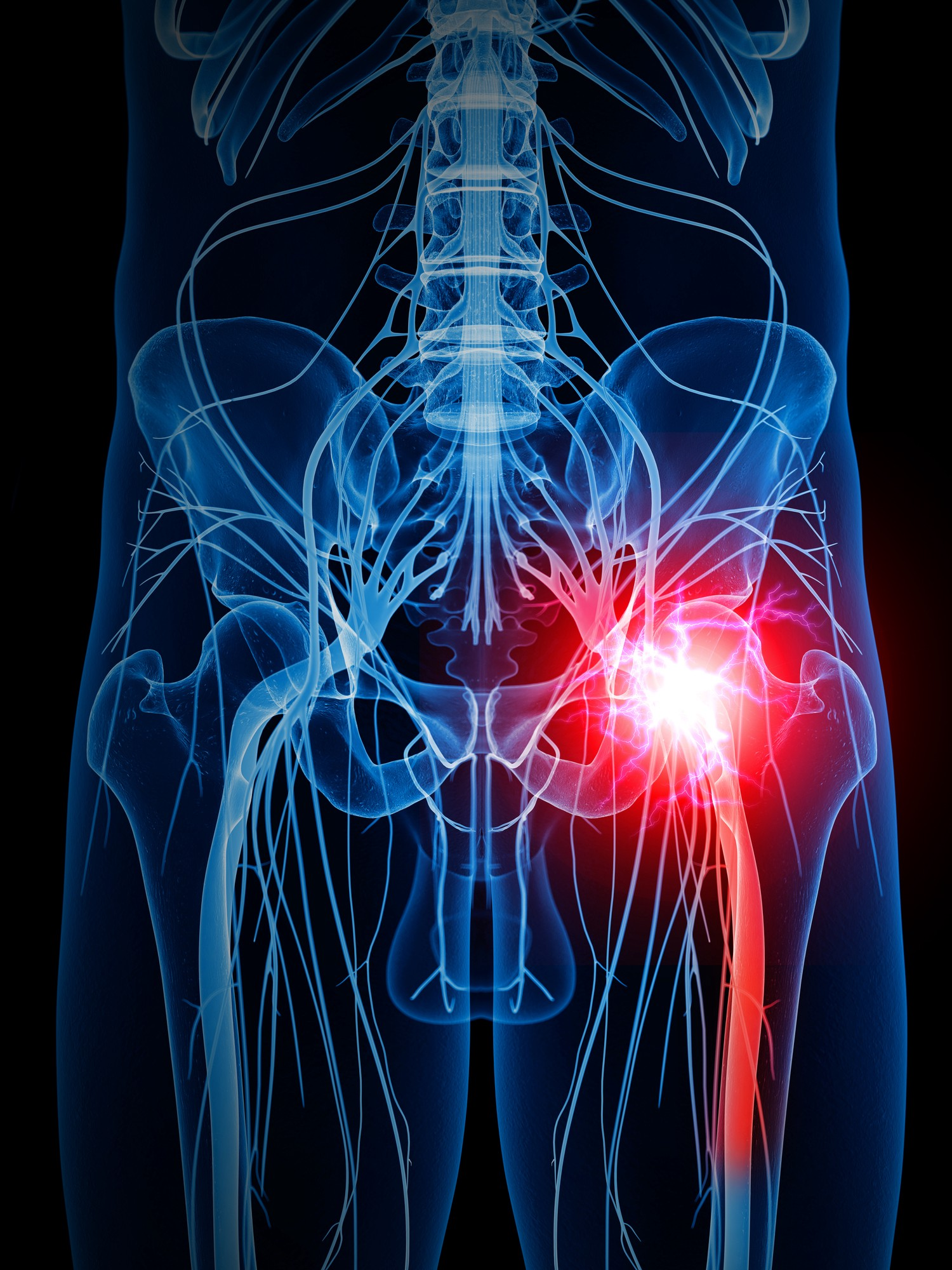 relief from sciatica with chiropractic care tebby clinic 704 541 7111