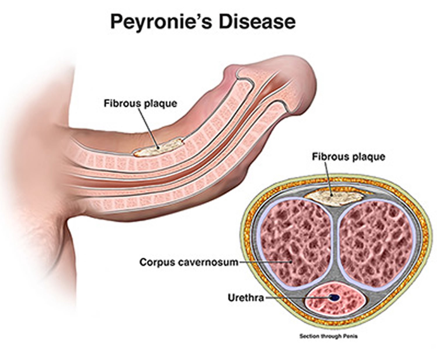 Peyronies Disease Ankula Gupta Medium