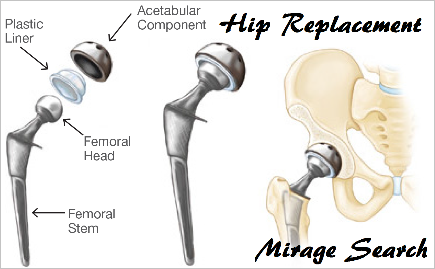 Hip Replacement All Treatment Medium