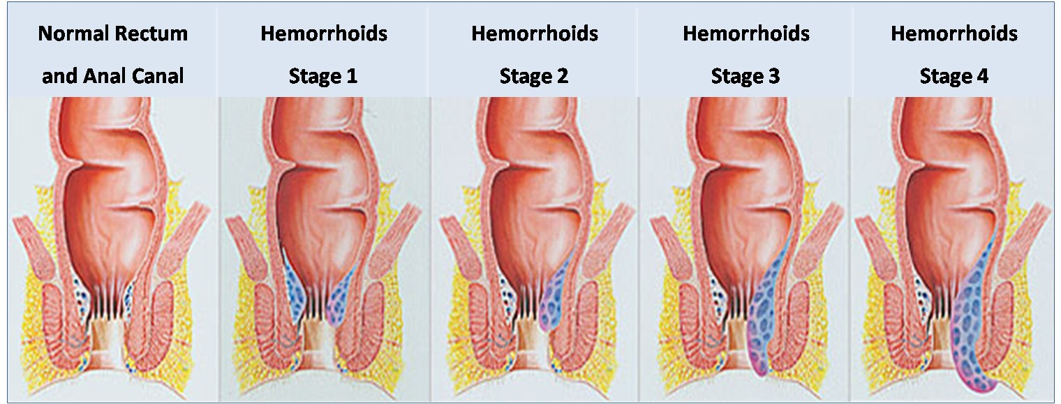 Hemorrhoids during pregnancy: causes and treatment