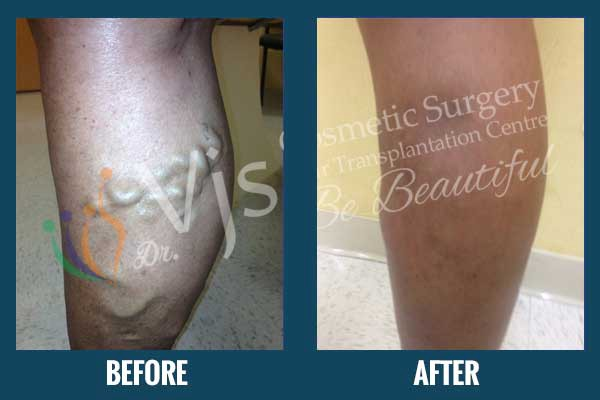 Just Like Any Other Treatment Or Surgery Special Post Operative Care Is Necessary After A Varicose Veins In India Doctor Vijay Kumar Leading