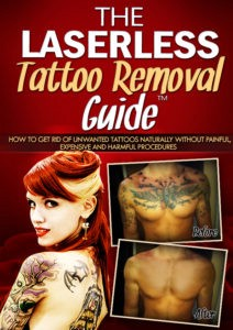 The Laserless Tattoo Removal Review By Dorian Davis