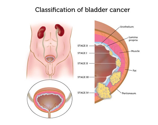 Beverly Hills Urology Cancer Surgical Treatments
