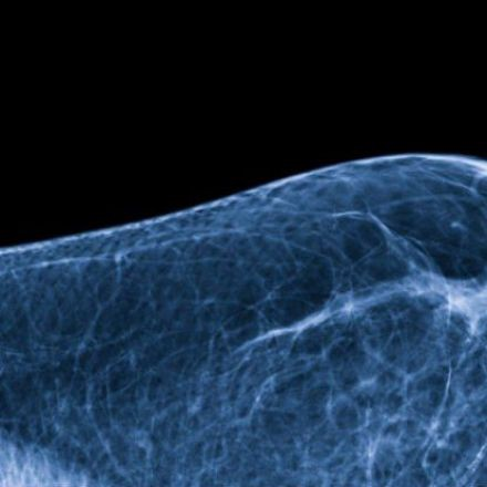 Breasts have their own microbiome - and it could influence your cancer risk