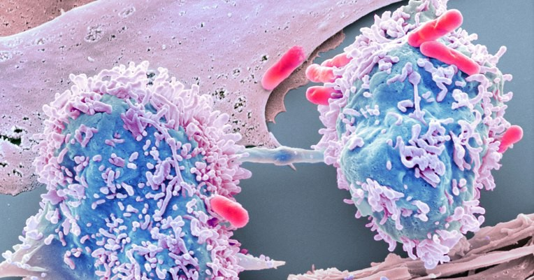 Using data science to beatcancer