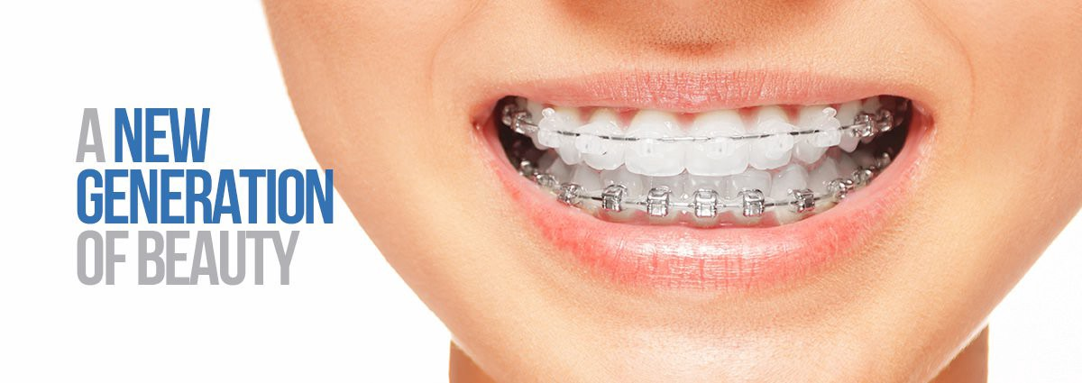 made for the same purpose as the traditional ones ceramic braces are a result of extensive dental research brackets of these braces are made from clear