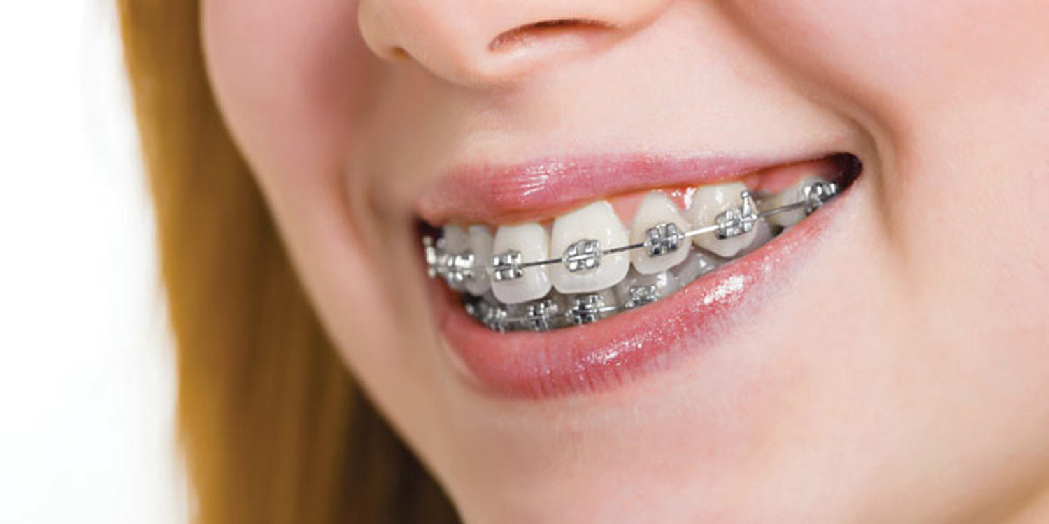 made from high grade premium quality stainless steel with metal brackets cross aligning each teeth stuck with food grade dental cement metal braces remain