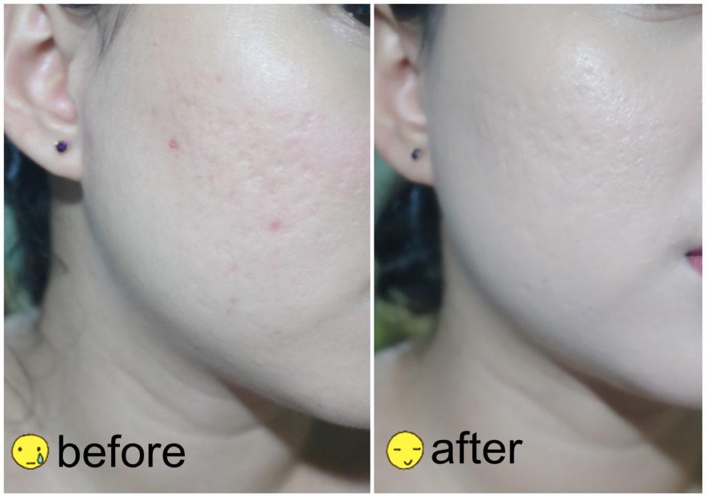april skin magic snow cushion review - before after
