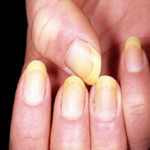You Had An Amazing Indian Curry And End Up Having Yellow Stains On Your Nails No Matter How Much Wash It Its Of Help Look Ugly