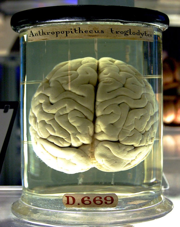 By Gaetan Lee . Tilt corrected by Kaldari. - originally posted to Flickr as Chimp Brain in a jar, CC BY 2.0, https://commons.wikimedia.org/w/index.php?curid=28819747