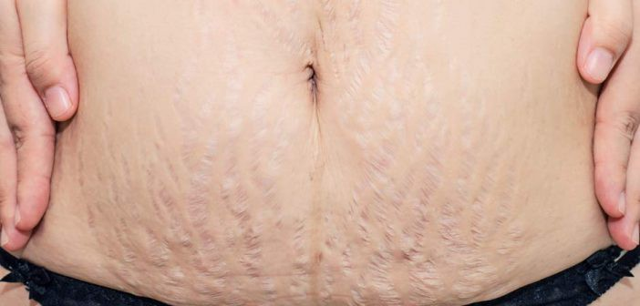 Quick Tips to Get Rid of Stretch Marks Fast – Healthy & Stylish – Medium