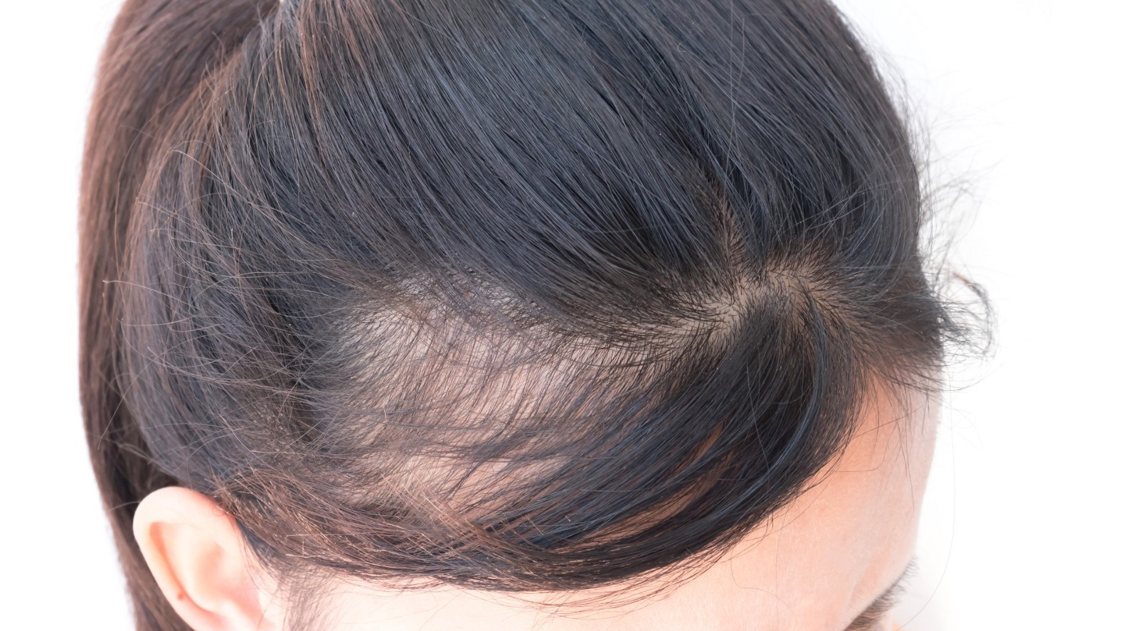 : key prompters, blood tests, all inclusive approach, alopecia in women, androgenic alopecia in women
