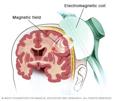 Can Repetitive Transcranial Magnetic Stimulation Rtms