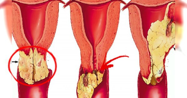 See These Signs To Know If Your Vagina Is Unhealthy And -2484