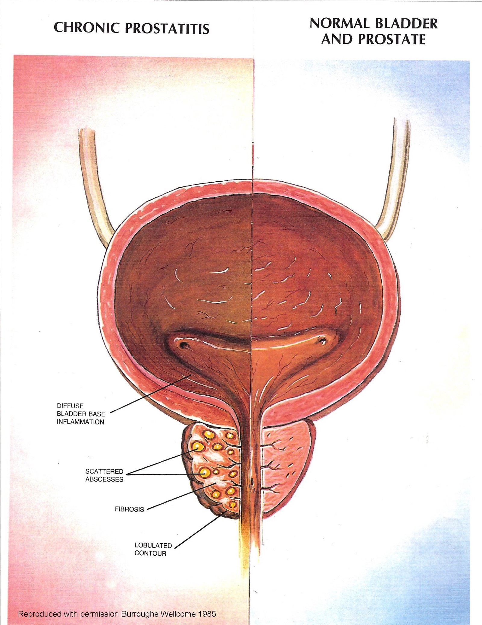 How to cure prostatitis 41