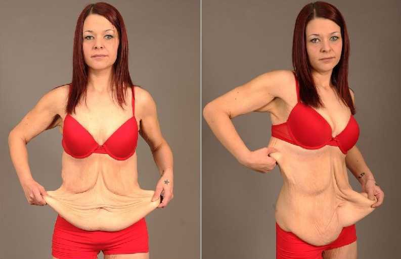 How to avoid loose skin after losing weight – Thailand Fit ...