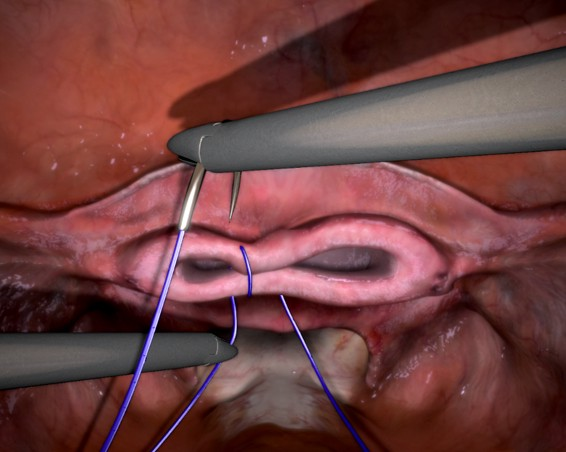 Nerve Damage To The Vaginal Cuff After Total Hysterectomy-7599