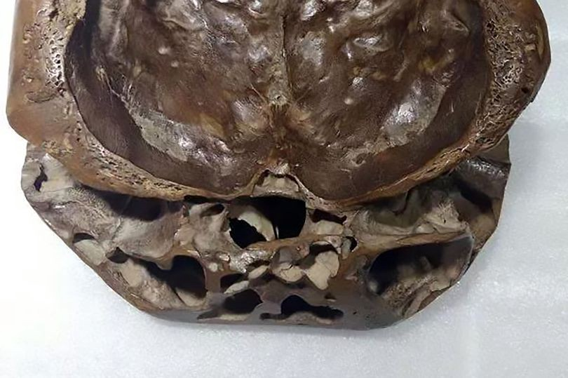 UFO hunter shares pictures of 'real-life ALIEN skull' with two separate 'layers'