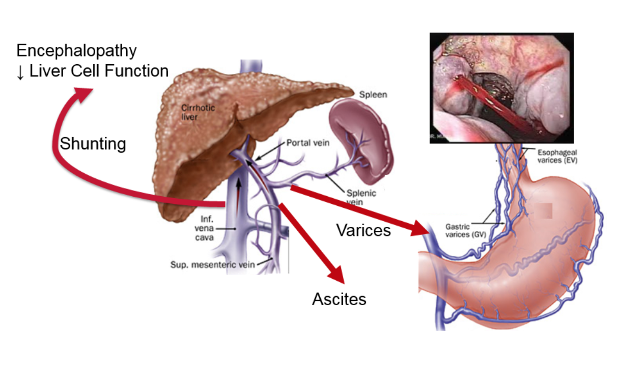 portal hypertension and why it s important in liver disease