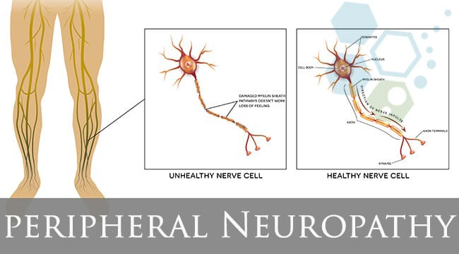 Learn About Peripheral Neuropathy With Dr Richard Hamer Md