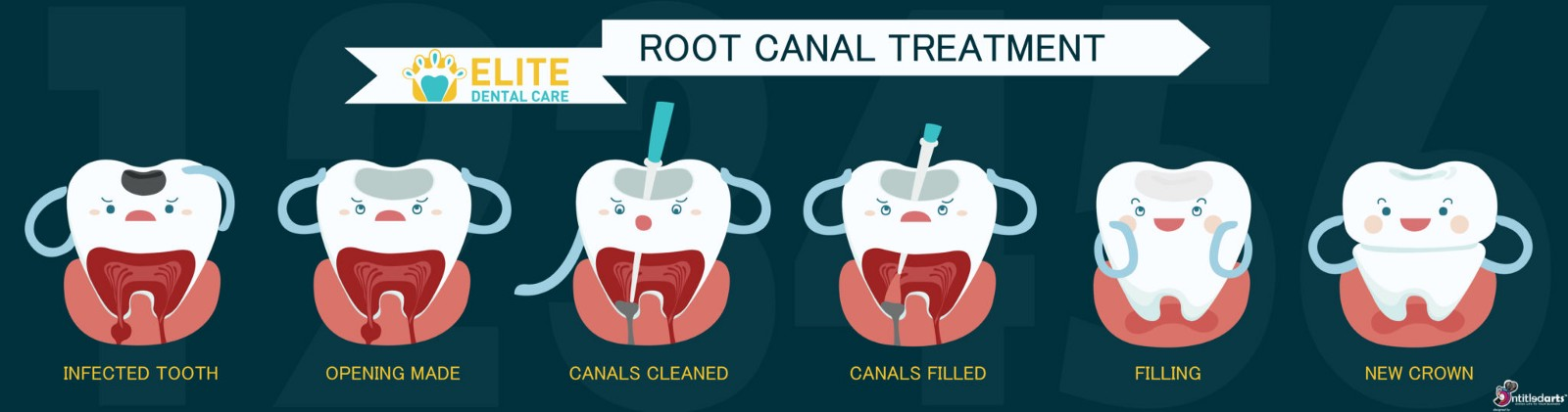 are you about to have your first root canal treatment