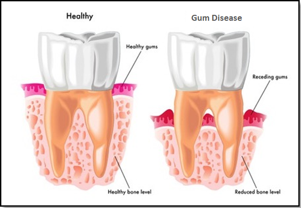 How to cure receding gums without surgery