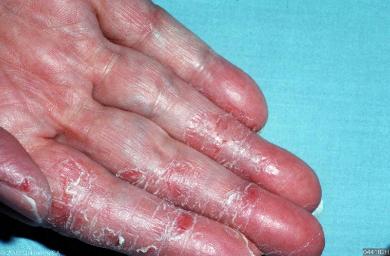 Get to know Eczema and...