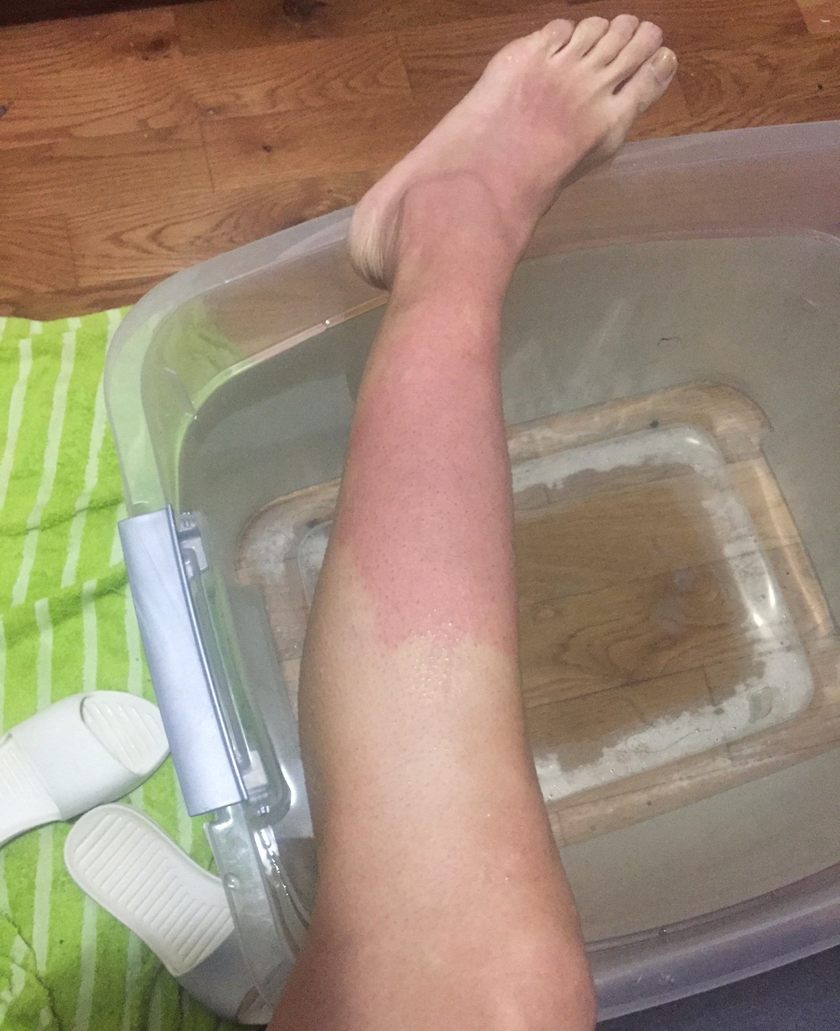 On how to treat a burn with boiling water