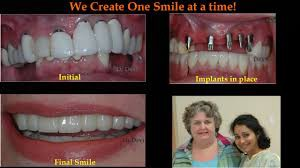 A cosmetic dentist in Scottsdale can give you the smile