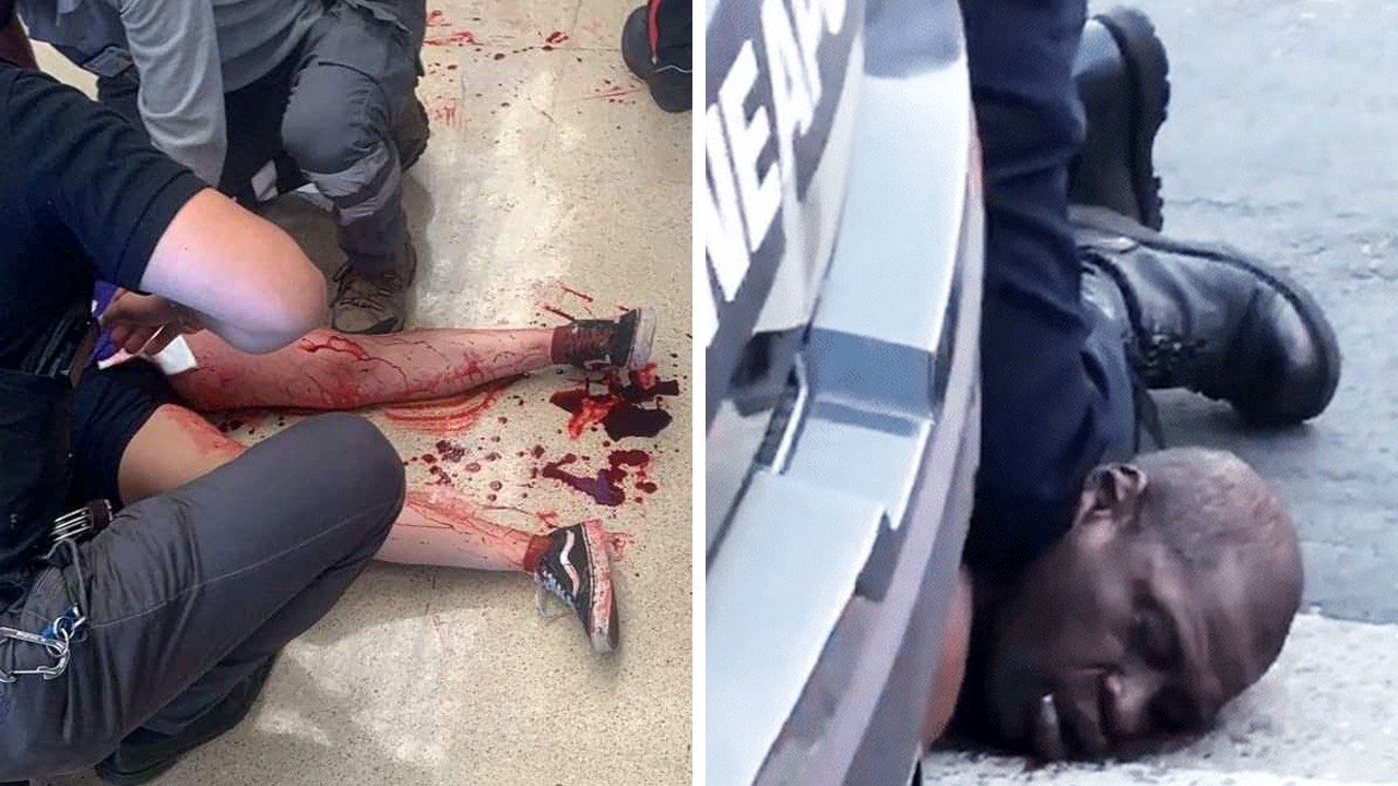 Two photos: bloody legs of a hurt girl, a knee of a policeman at the neck of George Floyd