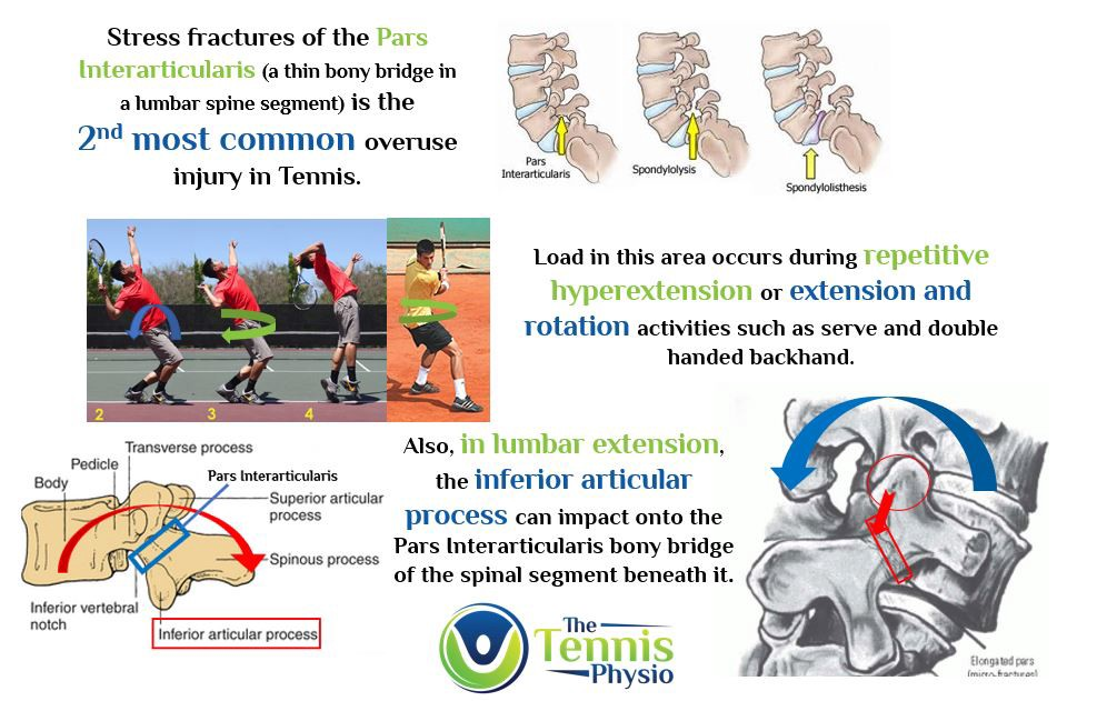 Lumbar Spine Stress Fractures — Spondyolysis – The Tennis Physio ...