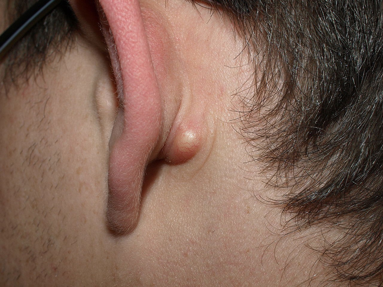 How To Get Rid Of Sebaceous Cyst With Fast And Effective Surgical