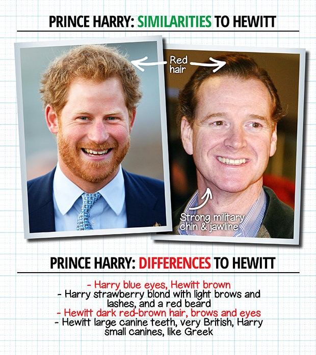 That Brought Him Into The Spotlight When It Was Revealed While Diana And Charles Divorced In Mid 90 S Both James Harry Share Fiery Red Hair