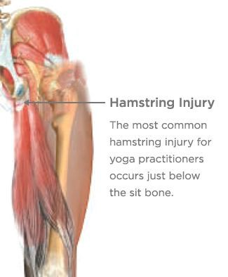 """Get Over """"Pain In the Butt"""" High Hamstring Tendonitis Pain."""
