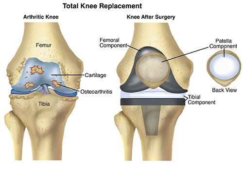 Knee Surgery In India Best Knee Replacement Surgeons In India